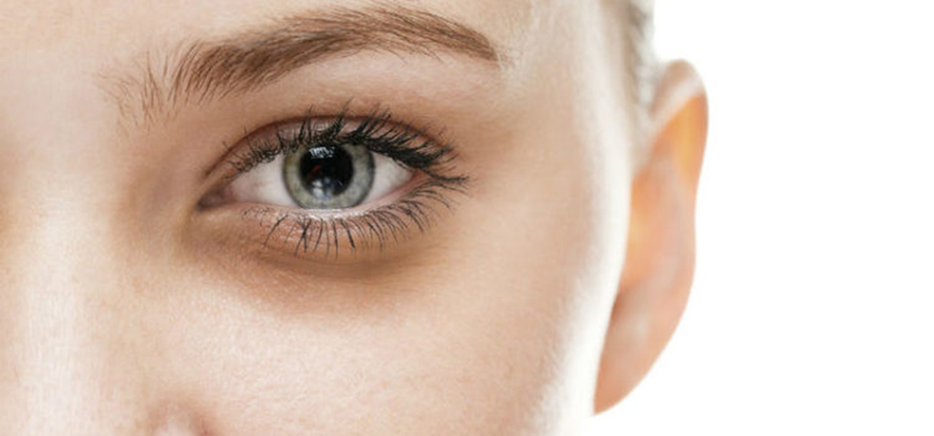 Likwidacja cieni pod oczami. Sposoby na worki pod oczami. Kremy