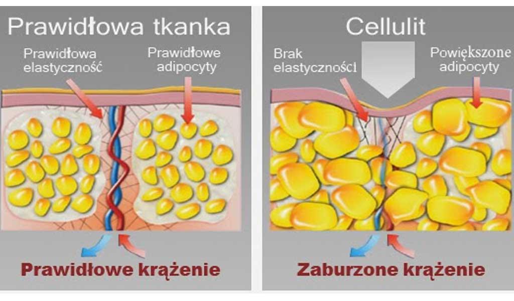 zabiegi wygładzające cellulit. redukcja cellulitu.