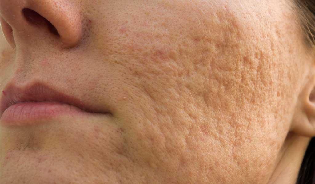 kwas salicylowy likwiduje trądzik. Działanie przeciwzapalne.