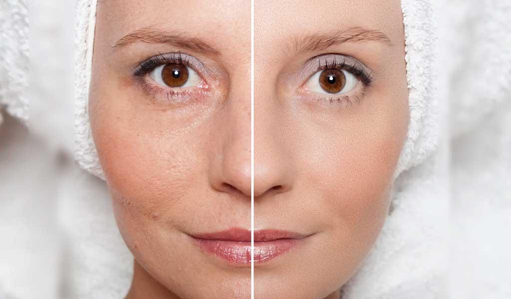 kwas glikolowy oczyszczanie skóry twarzy.