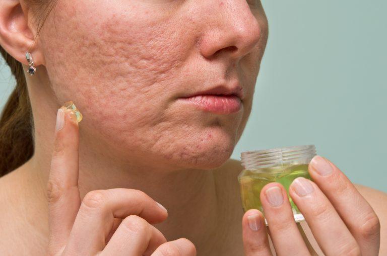 Blizny potrądzikowe – przyczyny, domowe sposoby, zabiegi kosmetologiczne